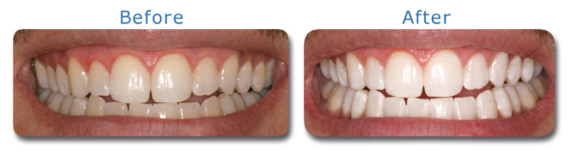 Laser teeth whitening: reviews, methods and results